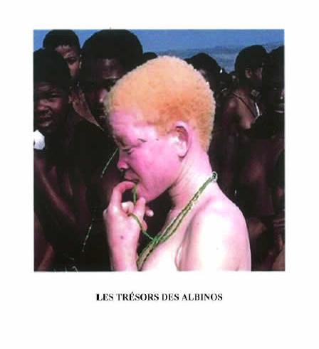 Daniel Kabuto, Les trésors des albinos