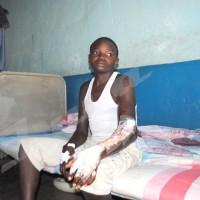 Mercredi, 28 mai 2014 – Ce jeune de 16 ans a été brûlé par son patron, l'accusant de laisser voler son vélo. Il est alité au centre de santé La Sagesse à Bwiza. ©J.E.V/Iwacu