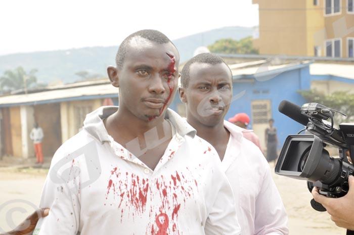 Il a été blessé par une grenade lacrymogène quand le policier l'a visé sciemment à Nyakabiga ©Iwacu