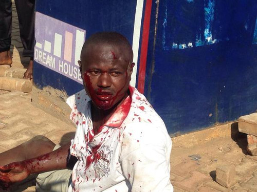 L'homme qui a lancé une grenade Boulevard de l'Uprona, juste avant d'être évacué par la police  ©Teddy Mazina