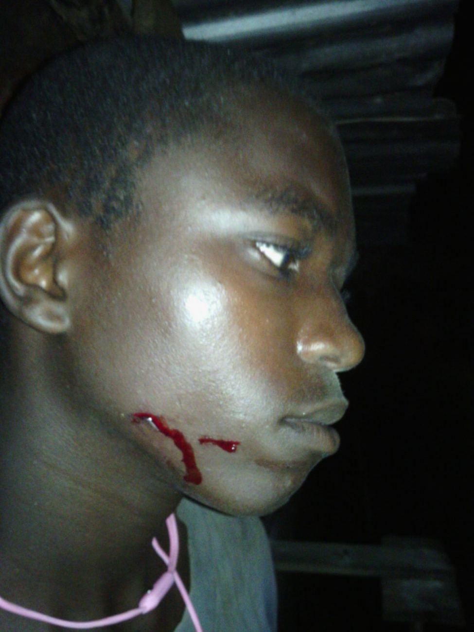 Un des deux blessés