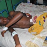 Yves Iradukunda sur son lit d'hôpital