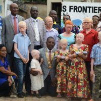 A genoux au milieu, le gouverneur de district entouré d'albinos et membres de Rotary Club Bujumbura-Ingoma