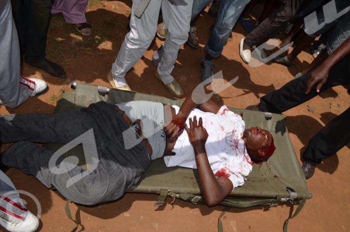 Un manifestant a reçu une balle au niveau de la tête ©Iwacu