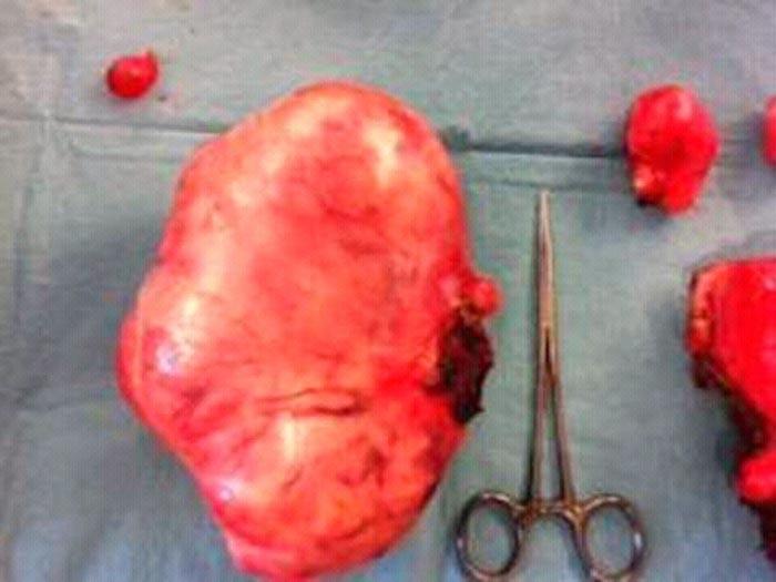Un fibrome peut peser quatre kilos voire plus. ©Droits réservés