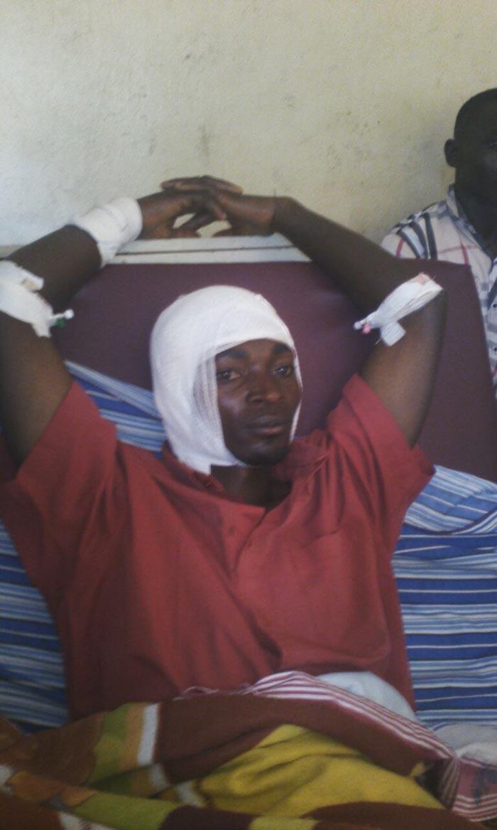 Salvator Nzobonimpa, admis à l'hôpital de Musema après avoir été attaqué à la machette