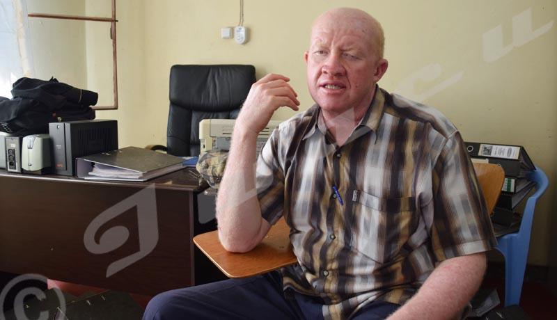 «Plus de 10 albinos atteints de cancer de la peau morts depuis 2009 »