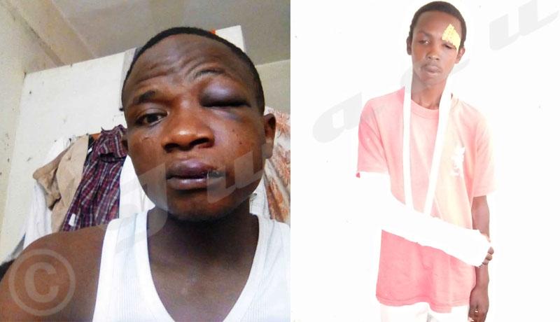 Université du Burundi : Tabassés par des « Imbonerakure », deux étudiants sont dans le désarroi
